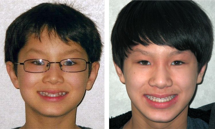 forest hills braces patient