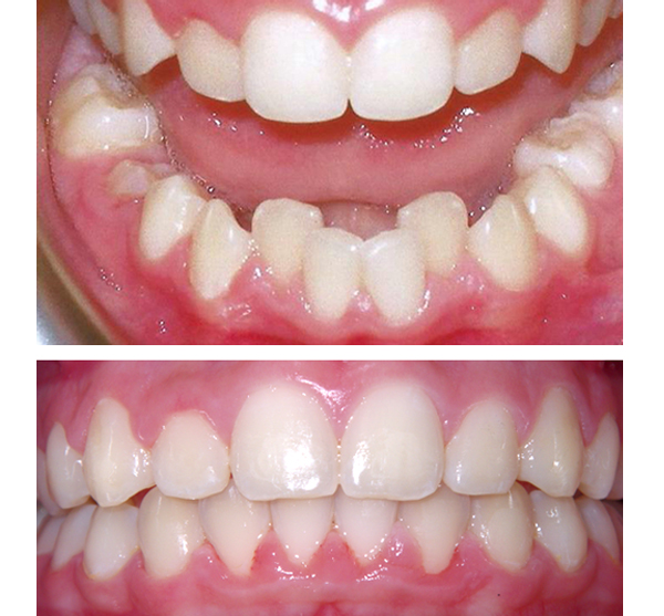 queens invisalign before and after