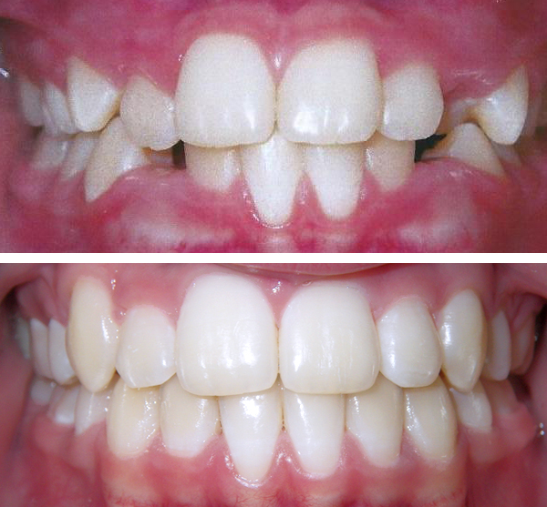 norwood braces before and after