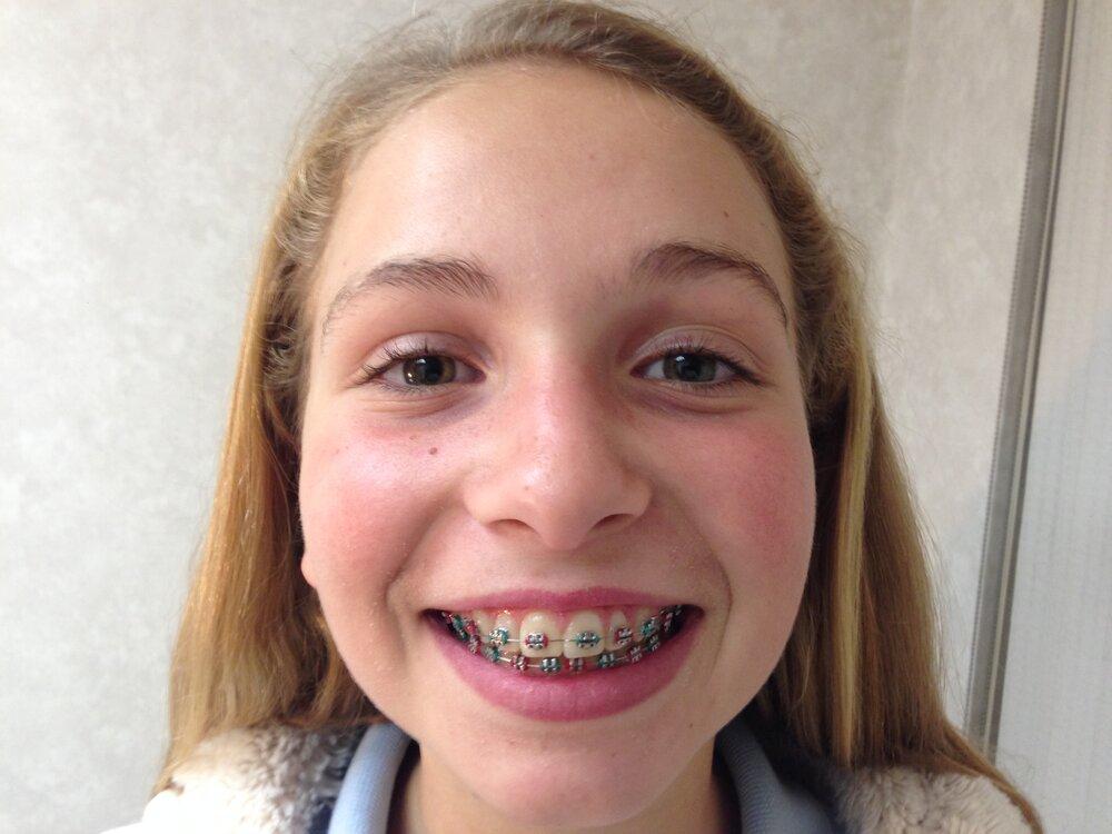Braces bronx, queens, rockville centre orthodontist patient