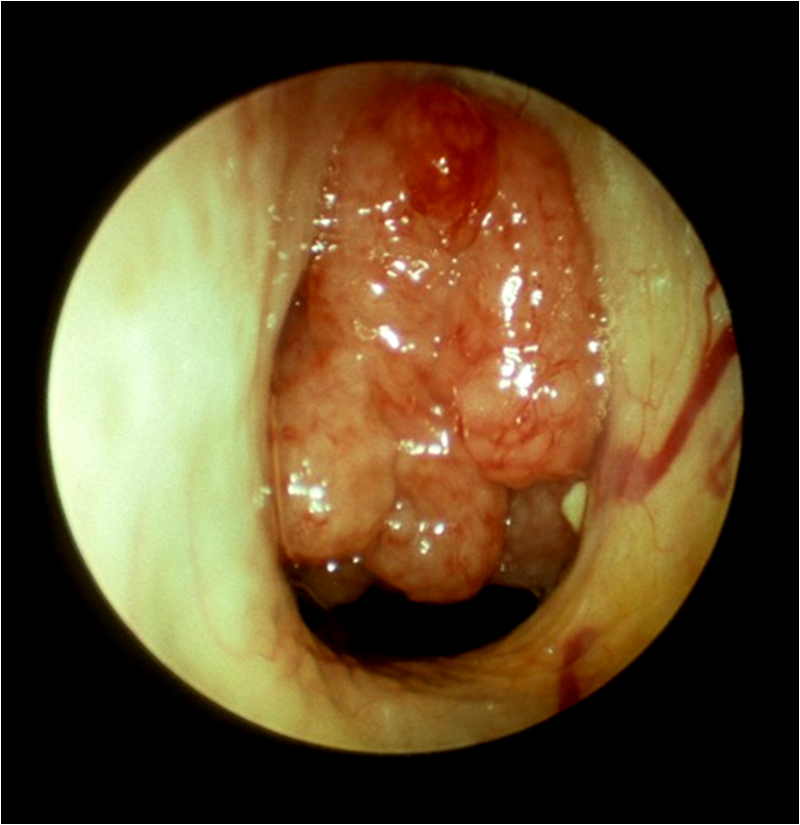 Enlarged adenoids at the back of the nose, seen with an endoscope (Michael Hawke MD)