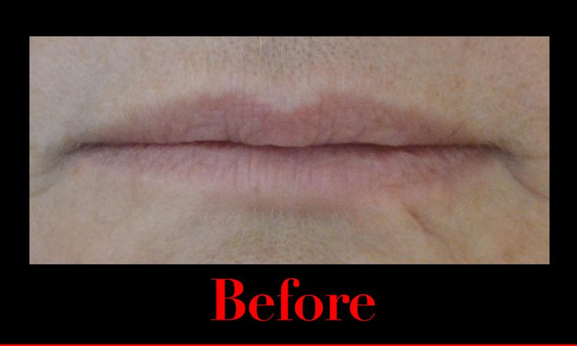 Before using fullips lip enhancement.