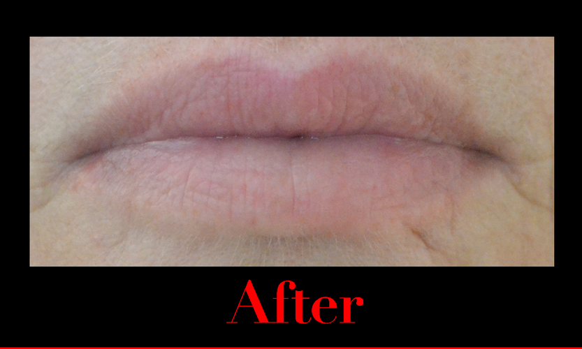 After using fullips lip enhancement.  fuller lips.