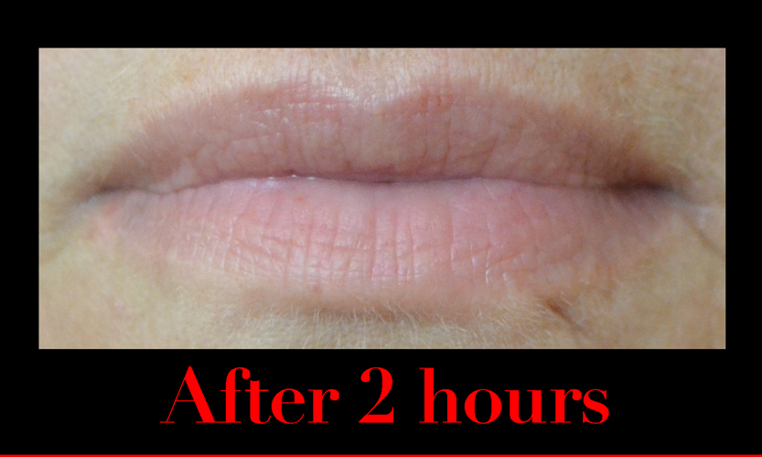 two hours after using fullips lip enhancement.  still fuller lips.  natural.