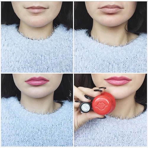 fullips_before_after