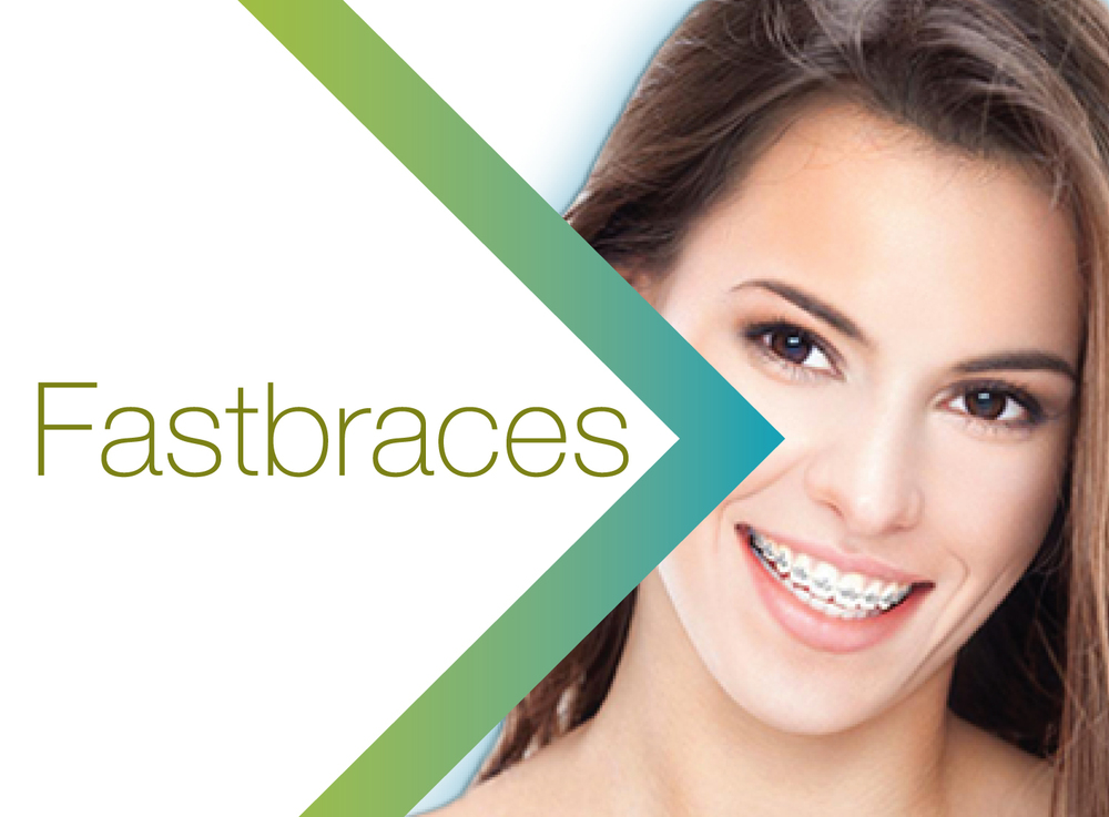 Glendowie Dental_Services_Fastbraces.jpg