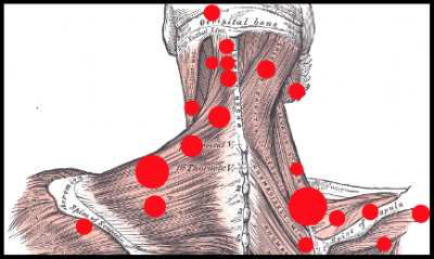 Myofascial Trigger Point - CHRONIC PAIN- LIMITED RANGE OF MOTIONThe word myofascial refers to the muscle tissue (myo) and the connective tissue that is in and around it (fascia).  When stressed or injured, the muscle and connective tissue can form trigger points -- or contracted knots -- that cause pain and tightness.Our therapeutic approach focuses in three areas:Evaluation:  Understanding where your pain is felt helps us determine which muscles may be causing it.  For example, certain kinds of low back pain can be referred from trigger points in the abdomen.  So, before we dive into treatments, we evaluate the possible sources of your pain.Treatment:  Treatment consists of massage, manual or acoustic compression (well wave), stretching and contraction.  Some patients may tolerate only very slight pressure at first while others may request a much greater level of compression.  The patient is the determining factor.Self-Care:  Chronic pain yields best to frequent treatment.  As such, we teach you simple self-care techniques to help you deal with acute activation and speed the healing process in between formal treatment sessions.  We often recommend two short self-care sessions daily especially at the beginning of treatment.  Working together in this way, we can accomplish more rapid and and complete pain relief.The initial session requires a one hour treatment and an apx. 30 min posture assessment and range-of-motion testing.  An in-depth medical history is taken and can be accessed in the form section of our website.Please contact the spa for further questions and explanation.30 Min  ::  $60  60 Min  ::  $100   90 Min  ::  $150