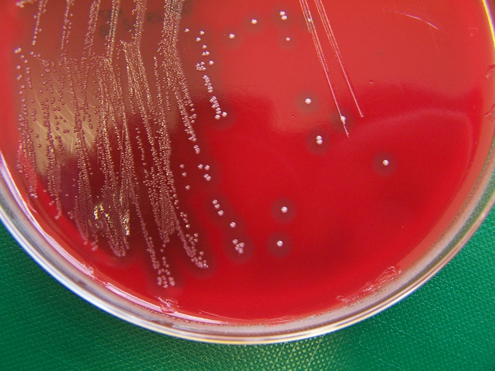 S. zooepidemicus colonies grown on a blood agar culture plate