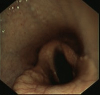 Copy of RLN endoscopy.jpg