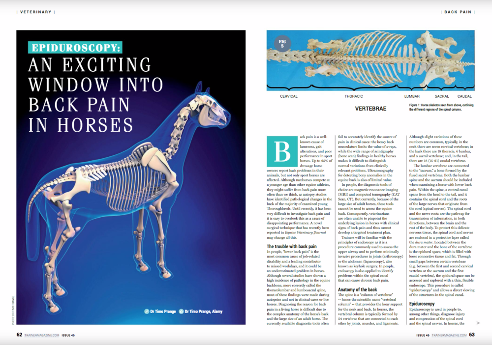 """Epiduroscopy: an exciting window into back pain in horses       Timo Prange       Back pain is a well-known cause of lameness, gait alterations, and poor performance in sport horses. Up to 25% of dressage horse owners report back problems in their animals, but not only sport horses are affected. Although racehorses compete at a younger age than other equine athletes, they might suffer from back pain more often than we think, as autopsy studies have identified pathological changes in the back of the majority of examined young Thoroughbreds. Until recently, it has been very difficult to investigate back pain and it is easy to overlook this as a cause of disappointing performance. A novel surgical technique that has recently been reported in Equine Veterinary Journal may change all this.       << EVJ logo near here>>       The trouble with back pain     In people, """"lower back pain"""" is the most common cause of job-related disability and a leading contributor to missed workdays, and it could be an underestimated problem in horses. Although several studies have shown a high incidence of pathology in the equine backbone, more correctly called the thoracolumbar and lumbosacral spine, most of these findings were made during autopsies and not in clinical cases or live horses. Diagnosing the reason for back pain in a living horse is difficult due to the complex anatomy of the horse's back and the large size of an adult horse. The currently available diagnostic tools often fail to accurately identify the source of pain in clinical cases: the heavy back musculature limits the value of x-rays, while the wide range of scintigraphy (bone scan) findings in healthy horses makes it difficult to distinguish normal variations from clinically relevant problems. Ultrasonography for detecting bony anomalies in the equine back is also of limited value.      In people, the diagnostic tools of choice are magnetic resonance imaging (MRI) and computed tomography (CAT Scan, CT). But currently, b"""