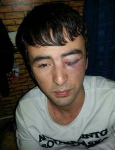 图片: 买买提江被殴打后的照片。 (维吾尔在线)