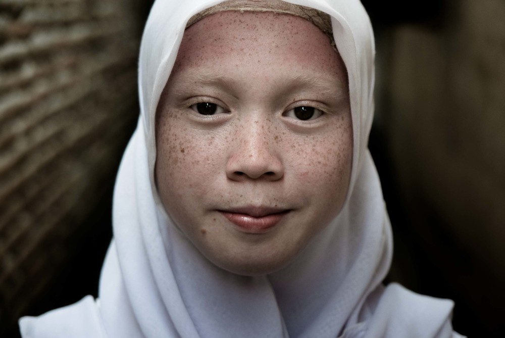 Portrait of an Albino-Indonesian teenager from East Java shot at 75mm using f/2.8 max aperture