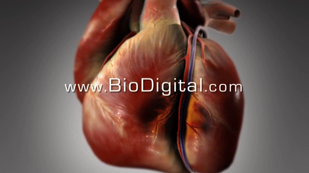 What is a heart attack?   Click on the link for a 3D video by  BioDigital  (48 seconds).