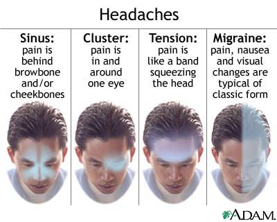 types-of-headaches.jpg