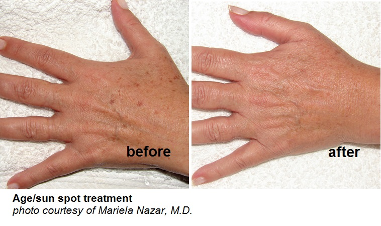 agesunspot hands B&A.jpg