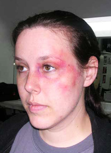 maria-lee-makeup-effects-bruise.jpg