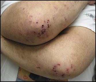 Dermatitis Herpetiformis.