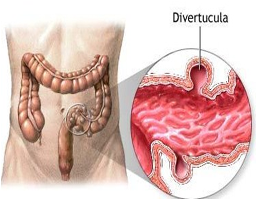 Diverticulosis.png