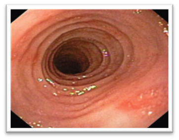 """Corrugation or Ringing"" of the esophagus that often causes the  problems with swallowing"