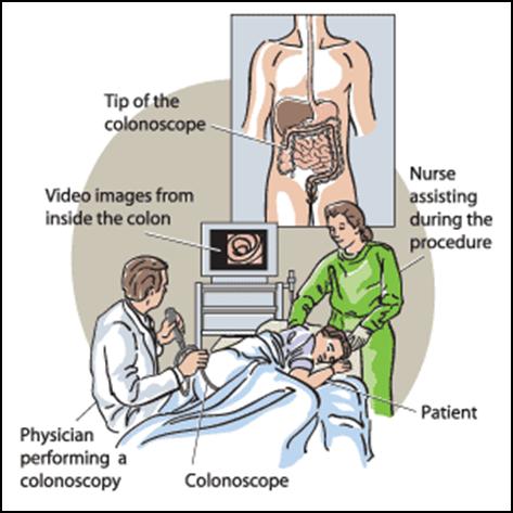 Colonoscopy.png