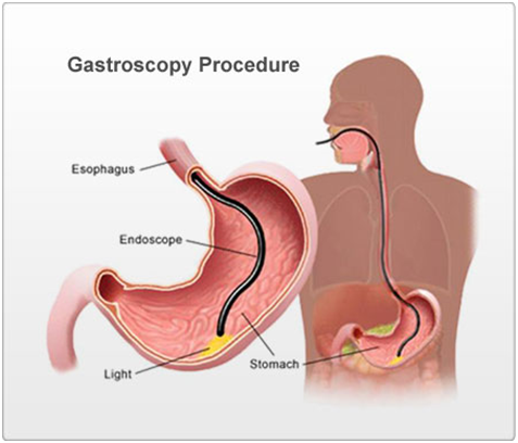 Gastroscopy procedure.png