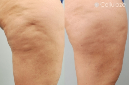Before-After-Cellulaze-Dibernardo-6mo-3.jpg