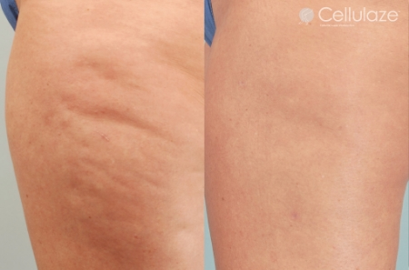 Before-After-Cellulaze-Dibernardo-6mo-1.jpg