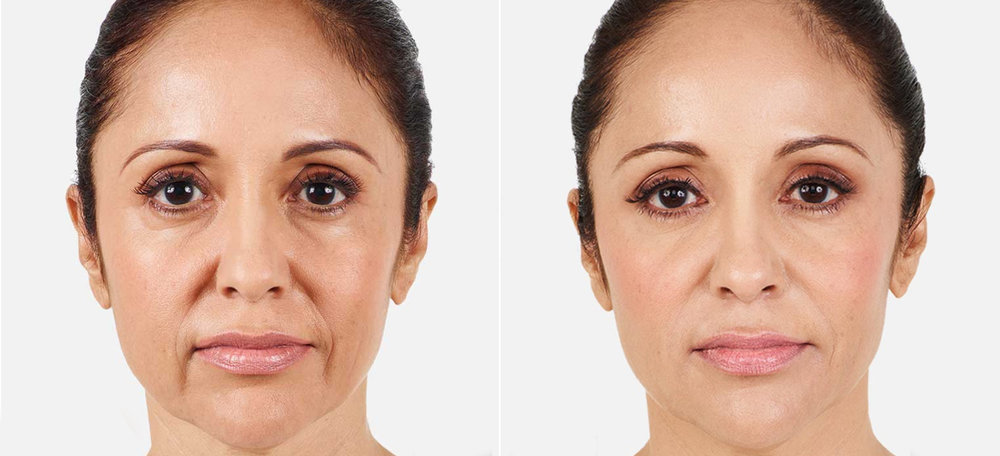 Actual patients. Result may vary.  Unretouched photos taken before treatment and 2 weeks after treatment. A total of 3.2 mL of JUVÉDERM® XC was injected into the parentheses, marionette, and corner lines.