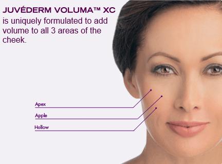 volumaXC1.png