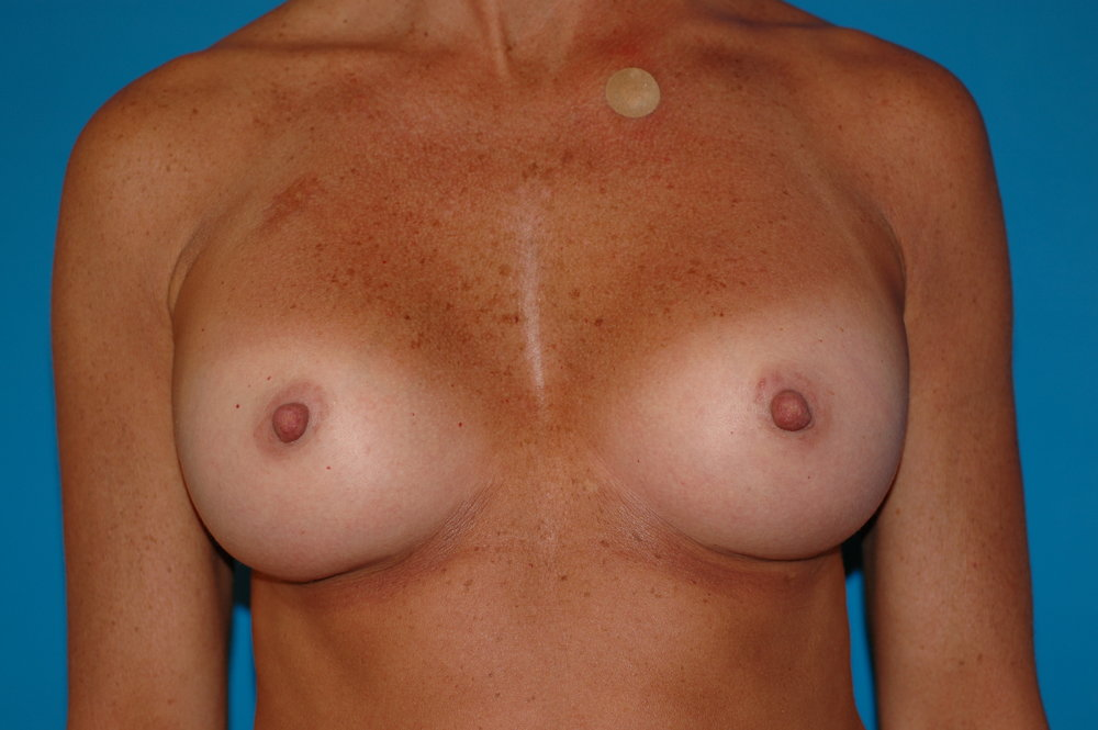 breast-after_3016.JPG