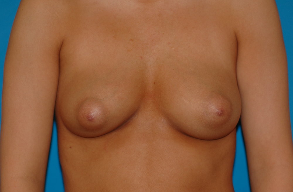 breastaug-before_2162.JPG