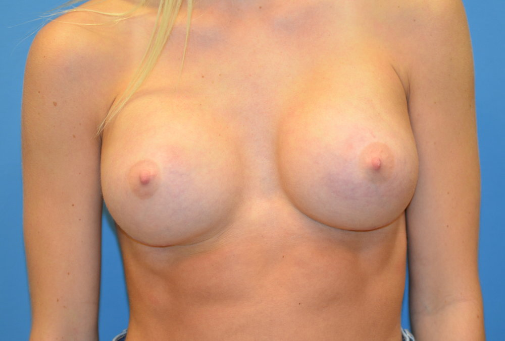 breastaug-after-front_6859.JPG