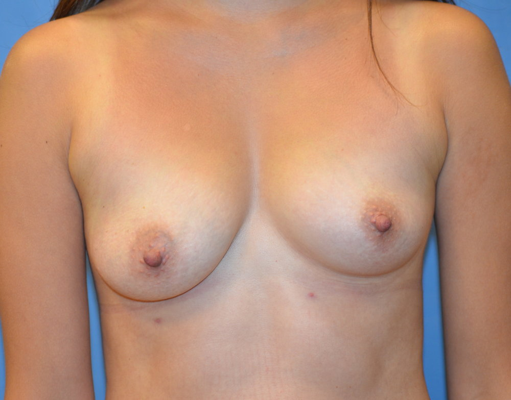 breastaug-before_8736.JPG