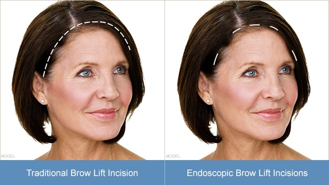 HCH-browlift-incisions.jpg