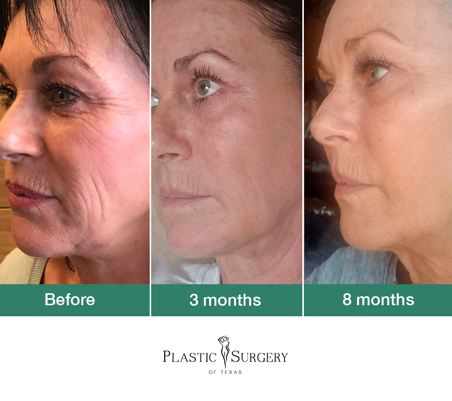 This patient had a combo of  Sculptra ,  SkinPen  and Venus Viva along with a  Biopelle Skin Care  regimen! Incredible Transformation. Bye bye, wrinkles!