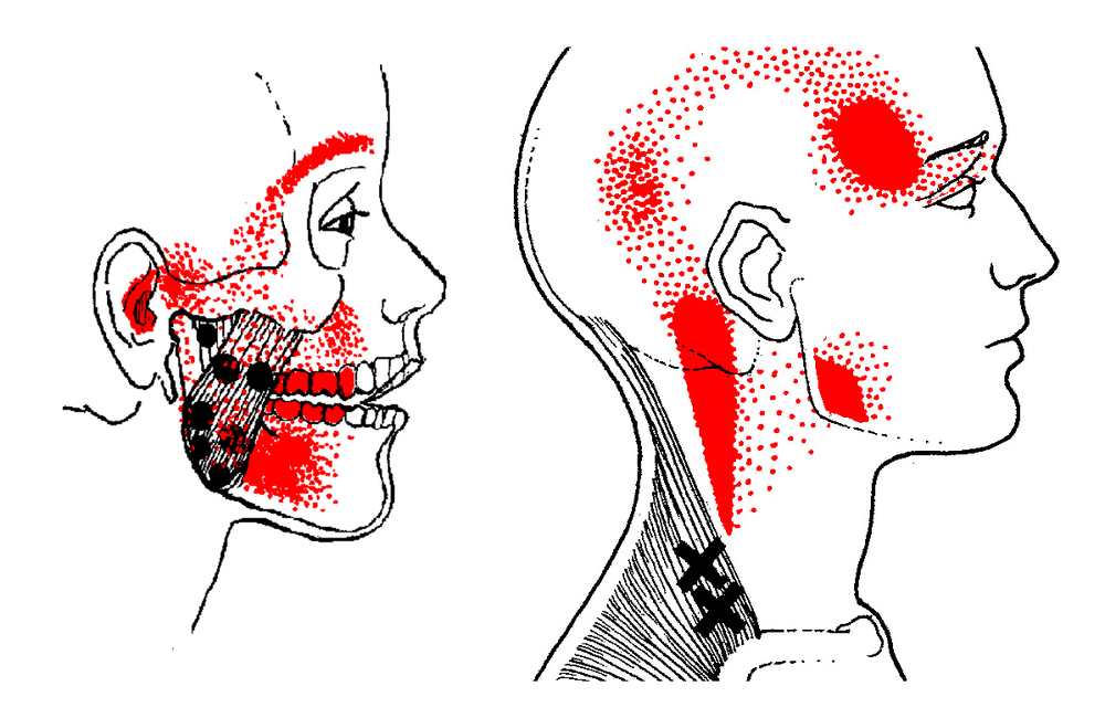 Facial trigger points