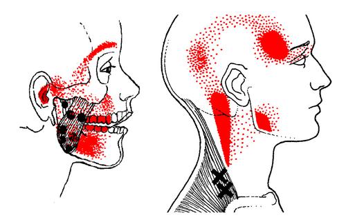 Fibromyalgia Treatment For Fibromyalgia Pain And More Fort