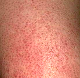 Keratosis Pilaris 10 Steps To A Cure Elaa