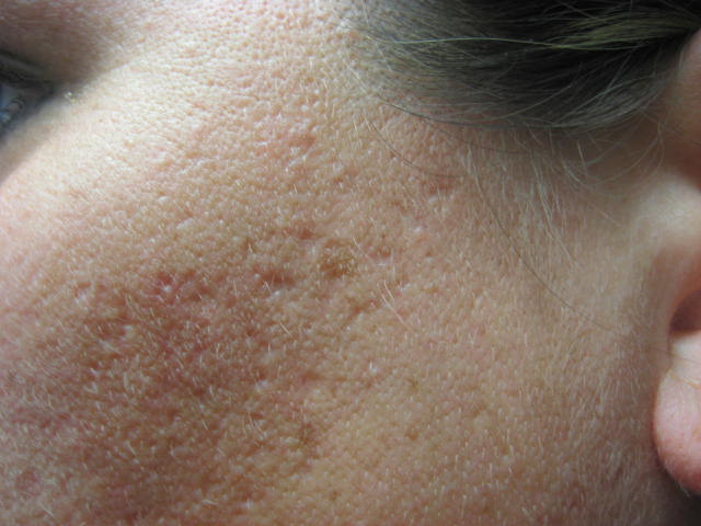 Natural Products That Get Rid Of Acne Scars