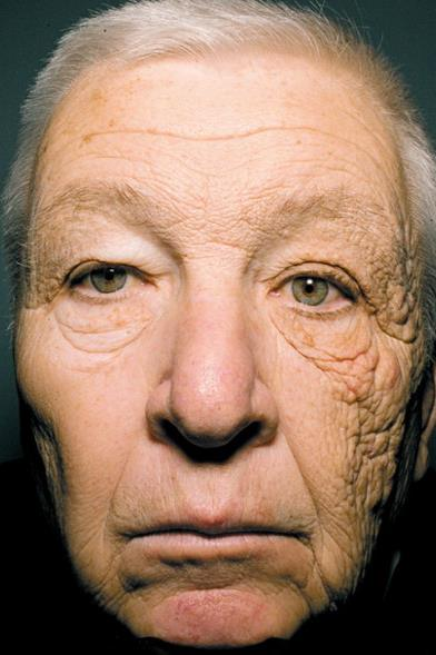69 year old man who spent 28 years driving a delivery truck. Note the left side of his face (which received more sun from the driver's side window) compared to the right.
