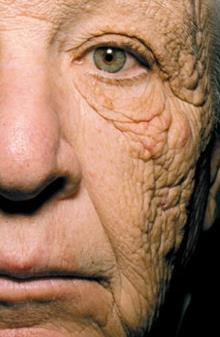 Close up of the sun-damaged side of this patient's face