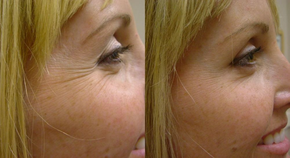 Before and after of Botox smoothing out the crows feet.Image credit Ihab Matta