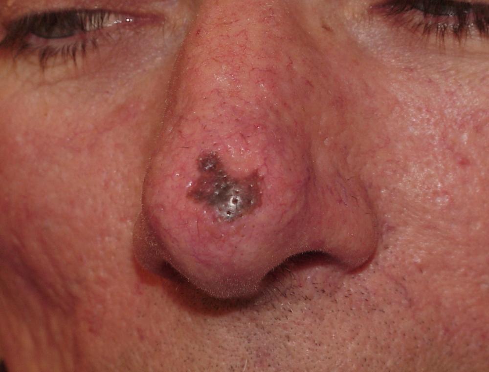 Melanoma. Image credit dermatology.org