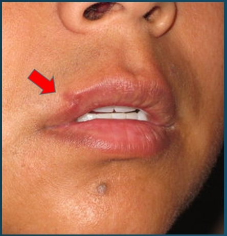 "1mm discrepancy of the ""vermillion border,"" the red-white junction of the upper lip."