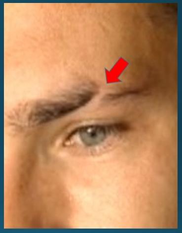 1mm eyebrow scar