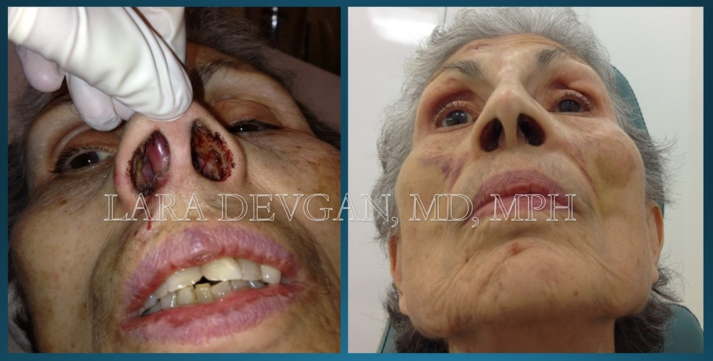 "88 year old woman with a nasal fracture, several facial cuts, and a ""septal hematoma"" inside her nose. Left photo is before fractures were repaired; right photo is two weeks after. Images copyright Lara Devgan, MD, PLLC."