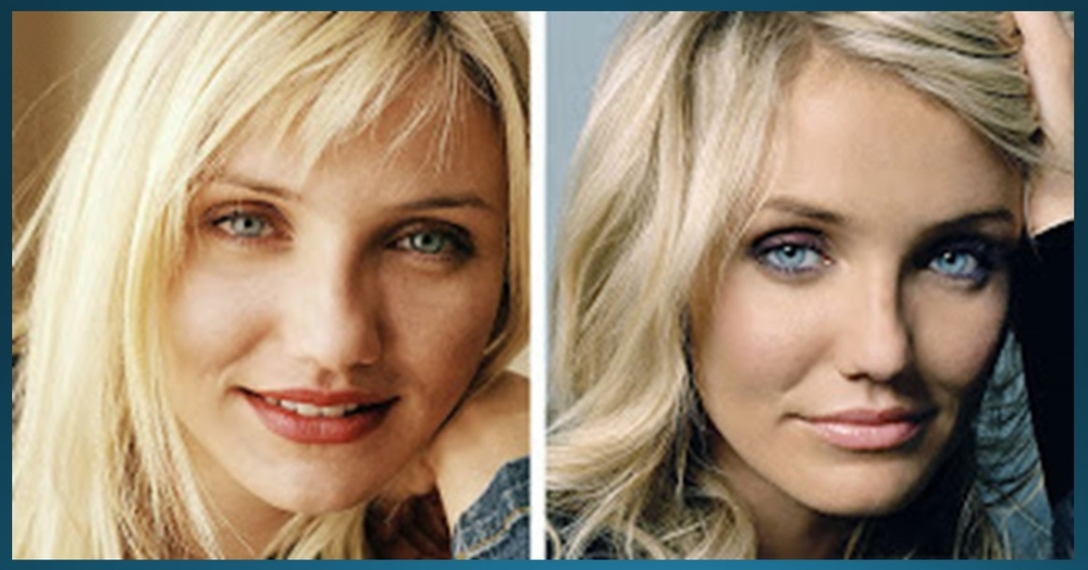 Actress Cameron Diaz has reportedly twice fractured her nose. Left photo is before repair; right photo is after.