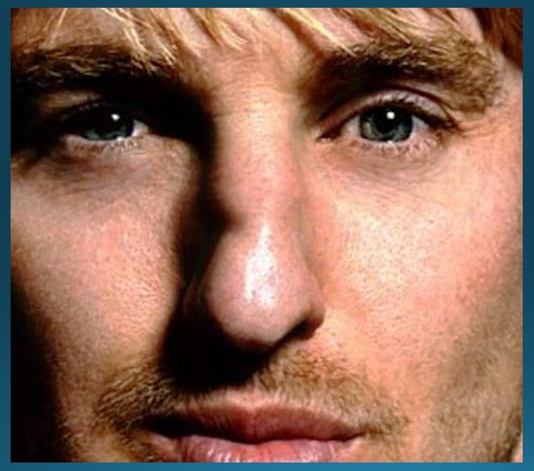 Actor Owen Wilson has reportedly fractured his nose several times, as evidenced by the crooked nasal dorsum and irregular shadow on the top of his nose.
