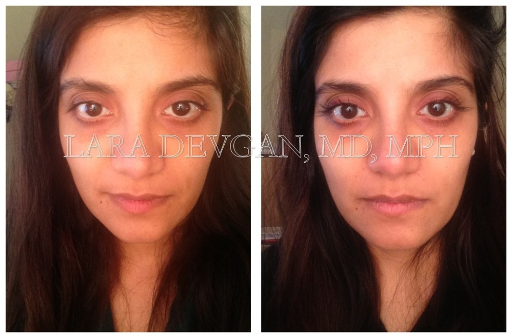 Dr. Devgan's eyelashes, before and after Latisse. NO MAKEUP IN EITHER PHOTO