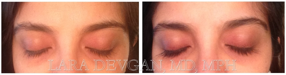 Dr. Devgan's eyelashes, before and after Latisse. NO MAKEUP IN EITHER PHOTO.